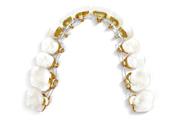 歯科矯正装置:インコグニート1