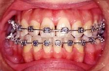 歯科矯正装置:メタル