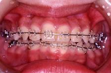 歯科矯正装置:セラミック