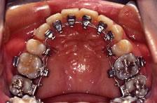 歯科矯正装置:リンガル