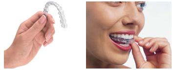 歯科矯正装置:インビサラン